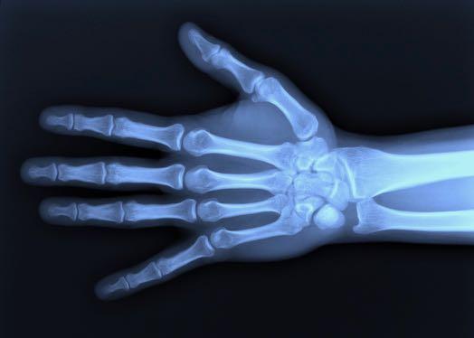 röntgen-hand